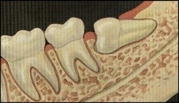gömük dişler